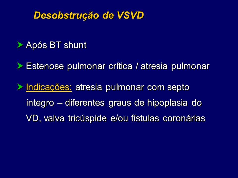 Desobstrução de VSVD Após BT shunt