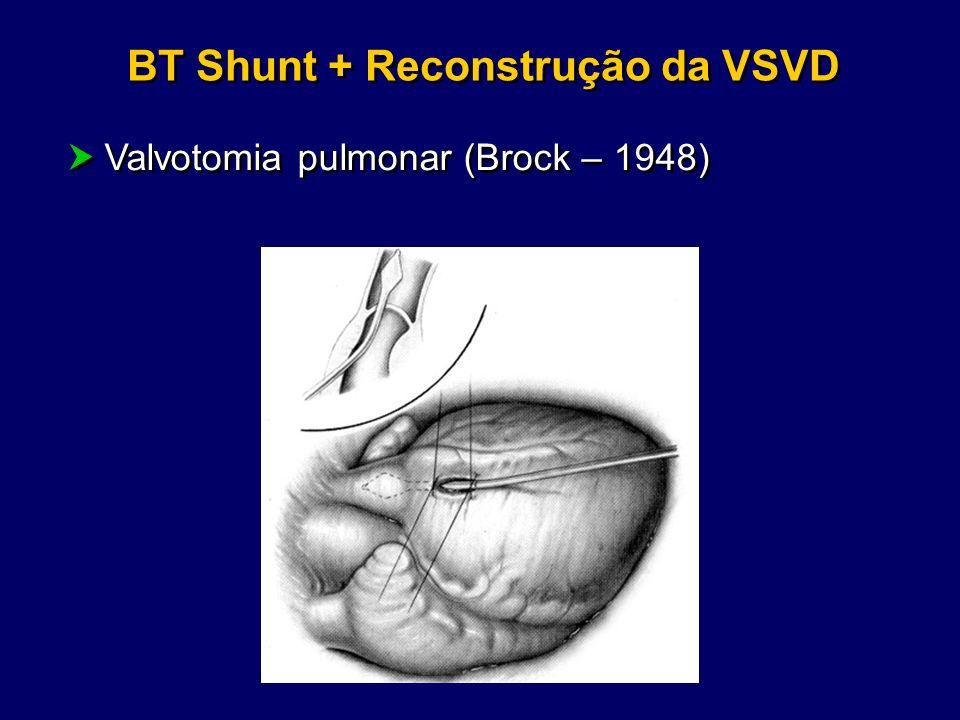 BT Shunt + Reconstrução da VSVD