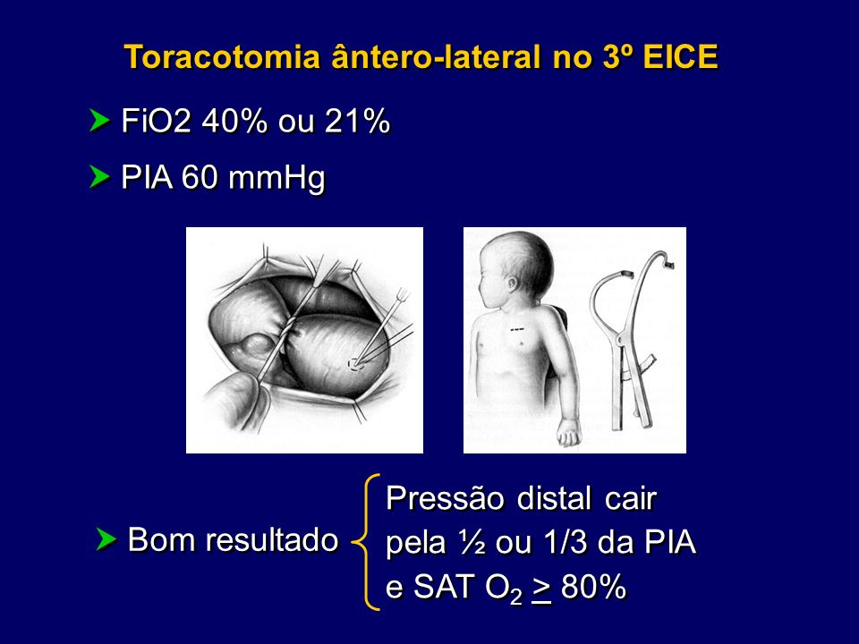 Toracotomia ântero-lateral no 3º EICE