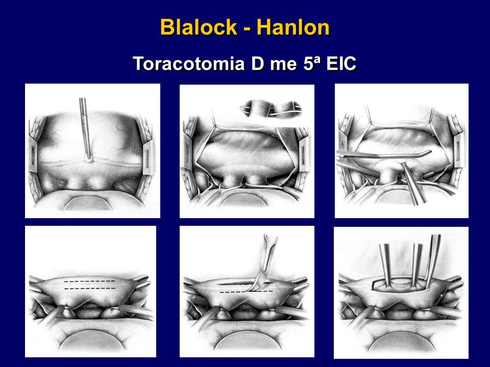Blalock - Hanlon Toracotomia D me 5ª EIC
