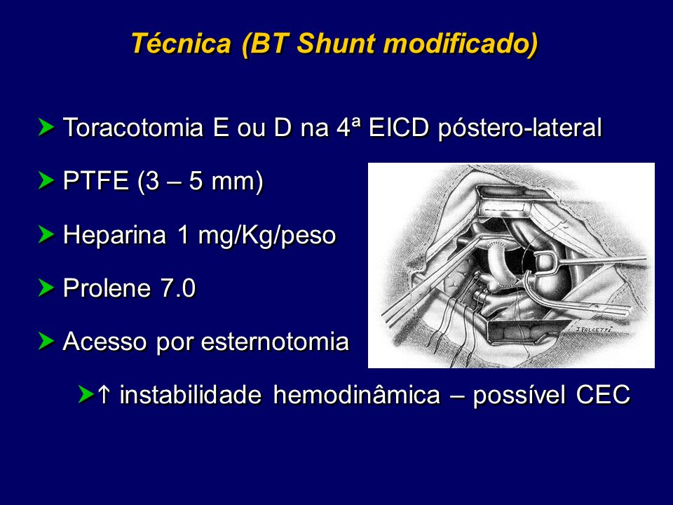 Técnica (BT Shunt modificado)