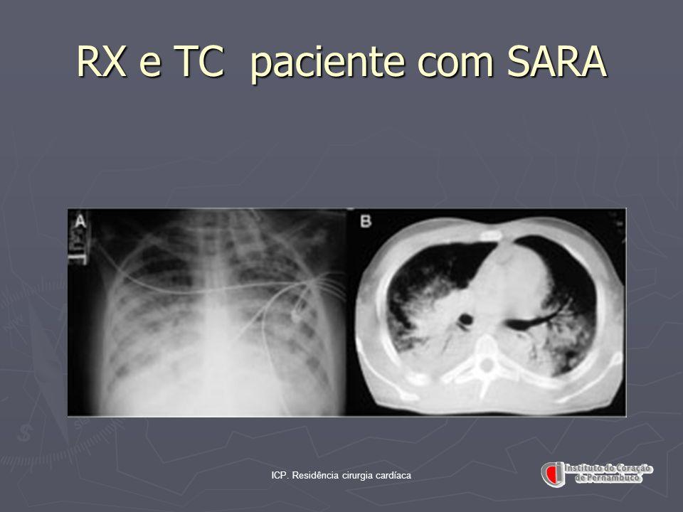 RX e TC paciente com SARA