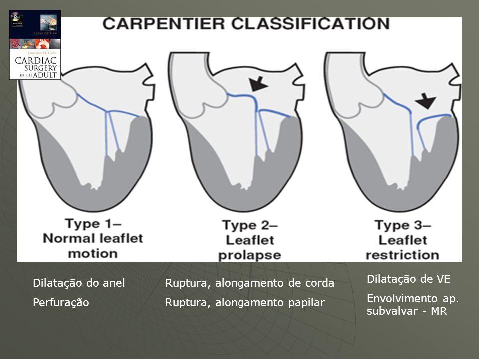 Mobilidade dos folhetos Classificação de Carpentier