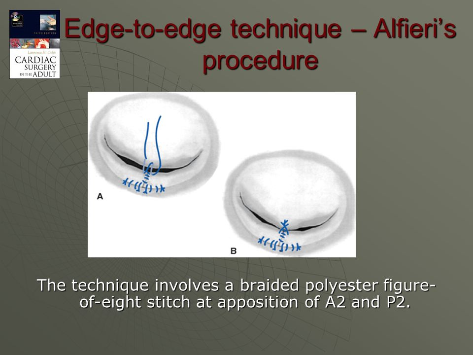 Edge-to-edge technique – Alfieri's procedure