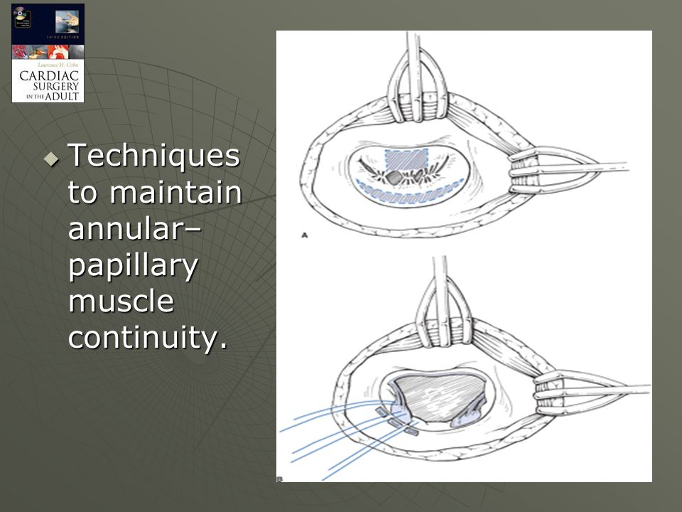 Techniques to maintain annular–papillary muscle continuity.