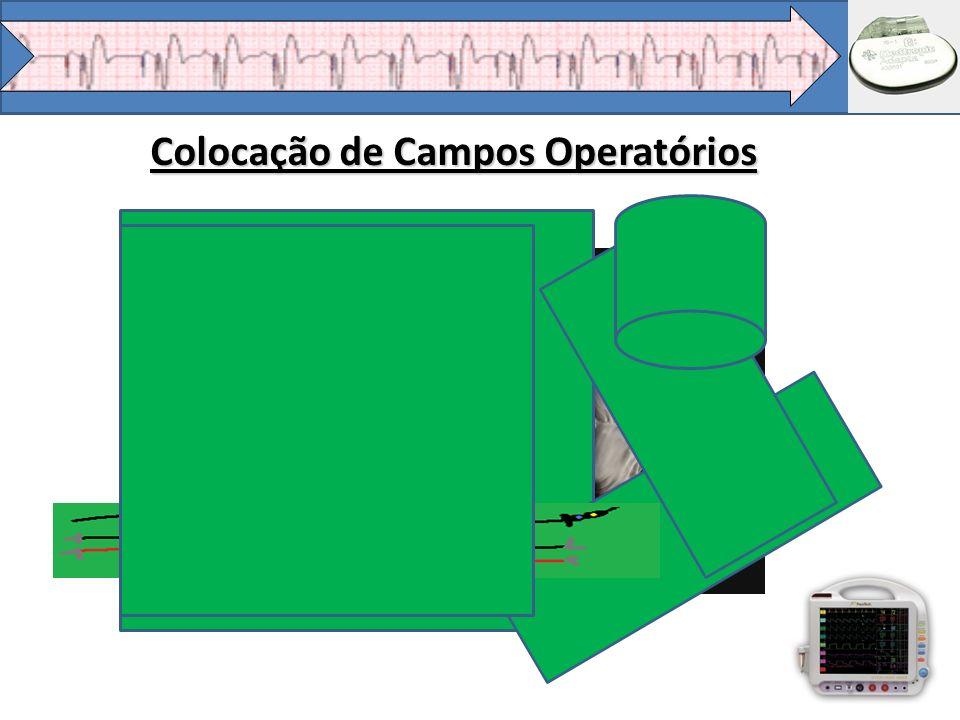 Colocação de Campos Operatórios