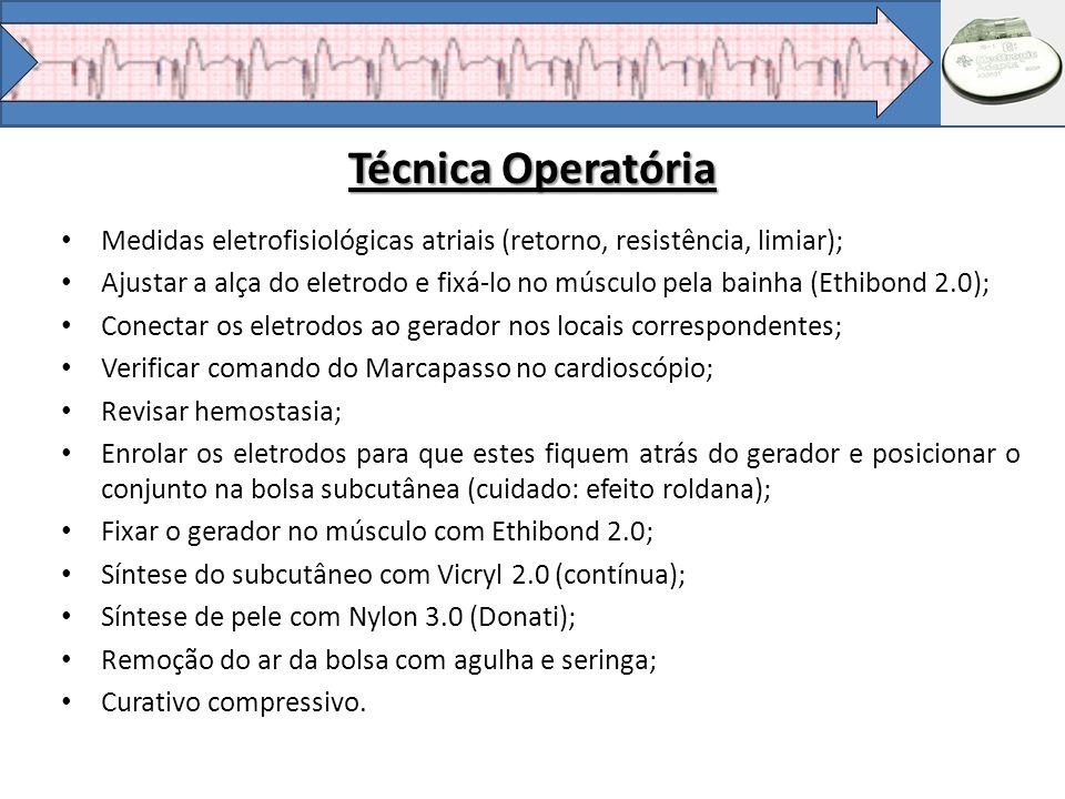 Técnica Operatória Medidas eletrofisiológicas atriais (retorno, resistência, limiar);