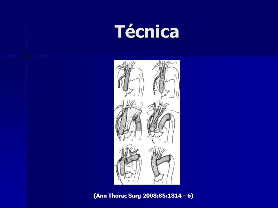 Técnica (Ann Thorac Surg 2008;85:1814 – 6)