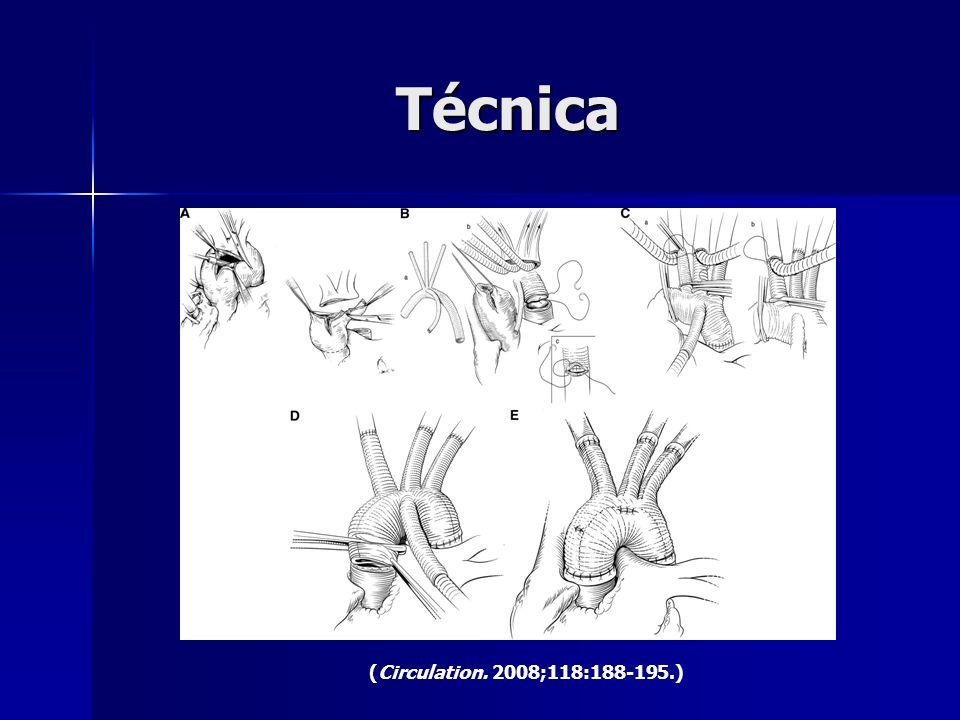 Técnica (Circulation. 2008;118:188-195.)
