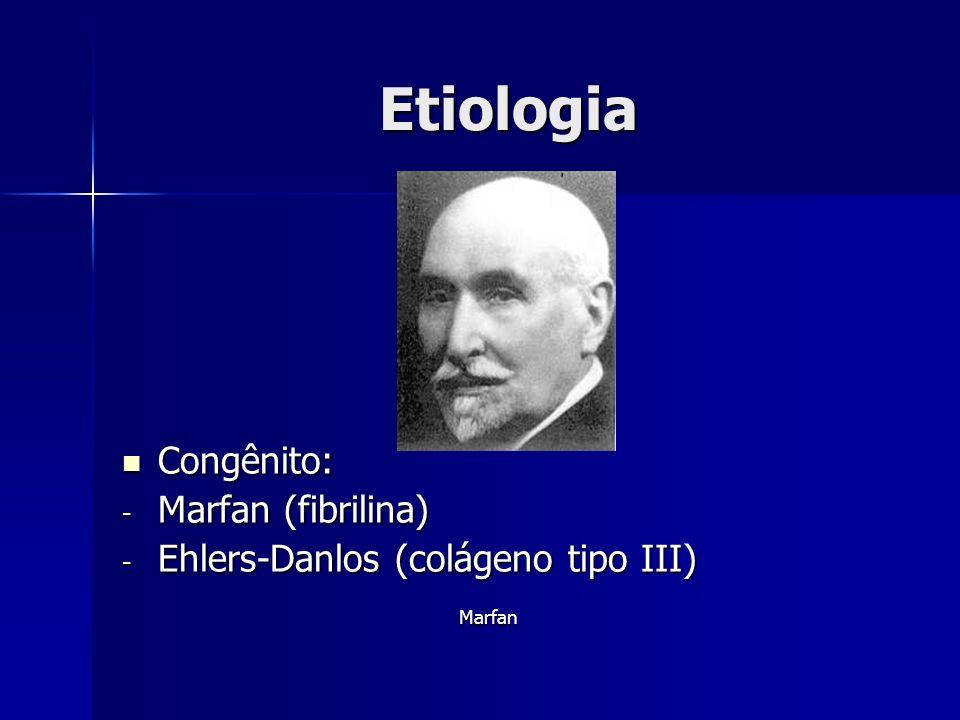 Etiologia Congênito: Marfan (fibrilina)