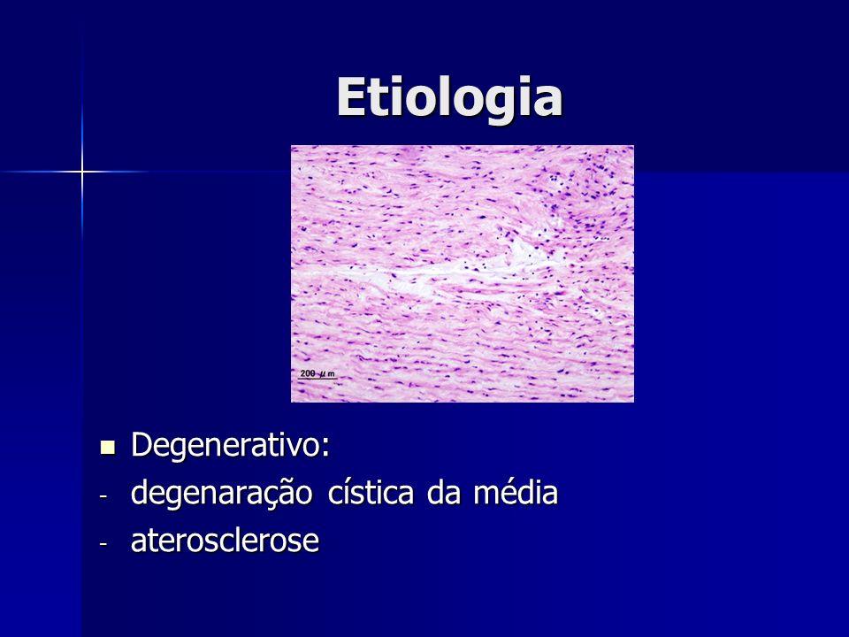Etiologia Degenerativo: degenaração cística da média aterosclerose
