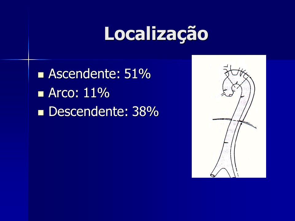 Localização Ascendente: 51% Arco: 11% Descendente: 38%