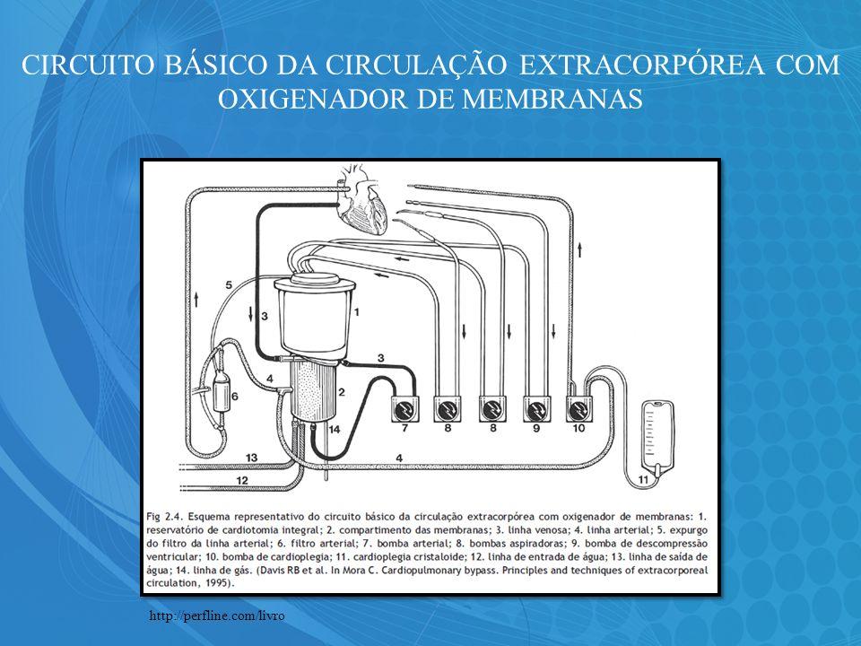 CIRCUITO BÁSICO DA CIRCULAÇÃO EXTRACORPÓREA COM OXIGENADOR DE MEMBRANAS