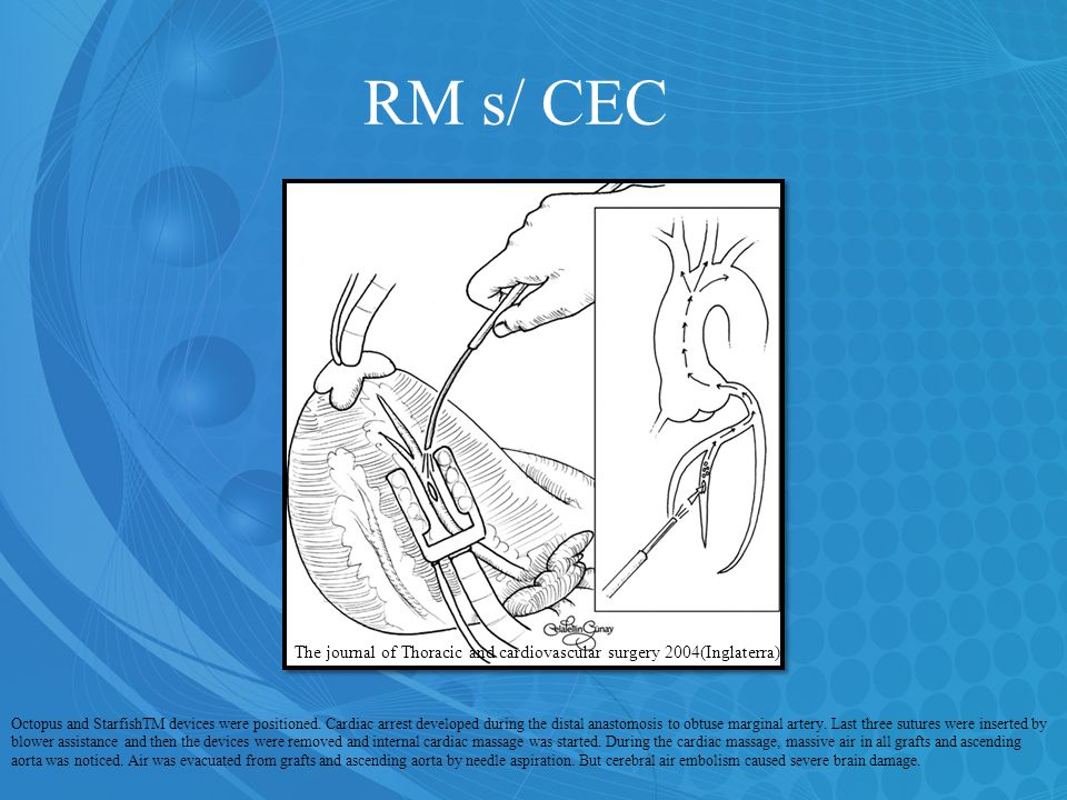 RM s/ CEC The journal of Thoracic and cardiovascular surgery 2004(Inglaterra)