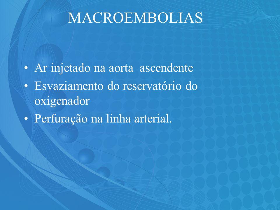 MACROEMBOLIAS Ar injetado na aorta ascendente