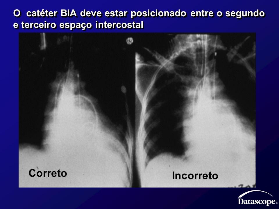 O catéter BIA deve estar posicionado entre o segundo e terceiro espaço intercostal