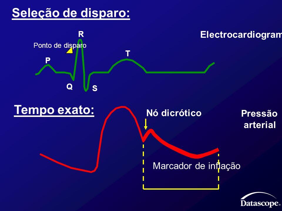 Seleção de disparo: Tempo exato: Electrocardiograma Nó dicrótico