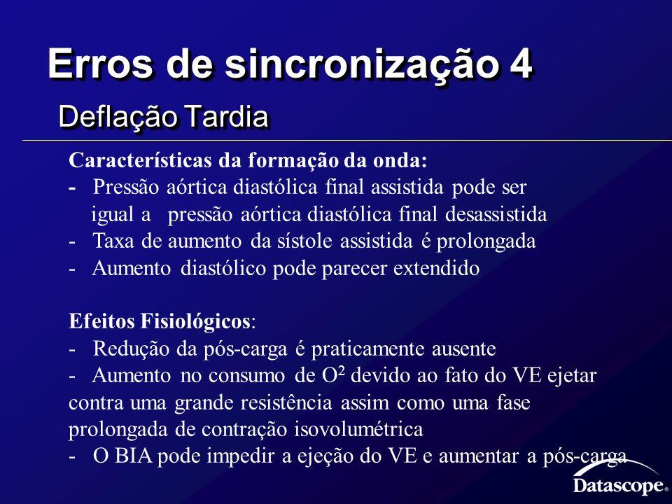 Erros de sincronização 4 Deflação Tardia