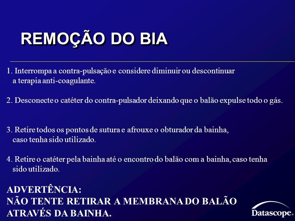 REMOÇÃO DO BIA ADVERTÊNCIA: NÃO TENTE RETIRAR A MEMBRANA DO BALÃO