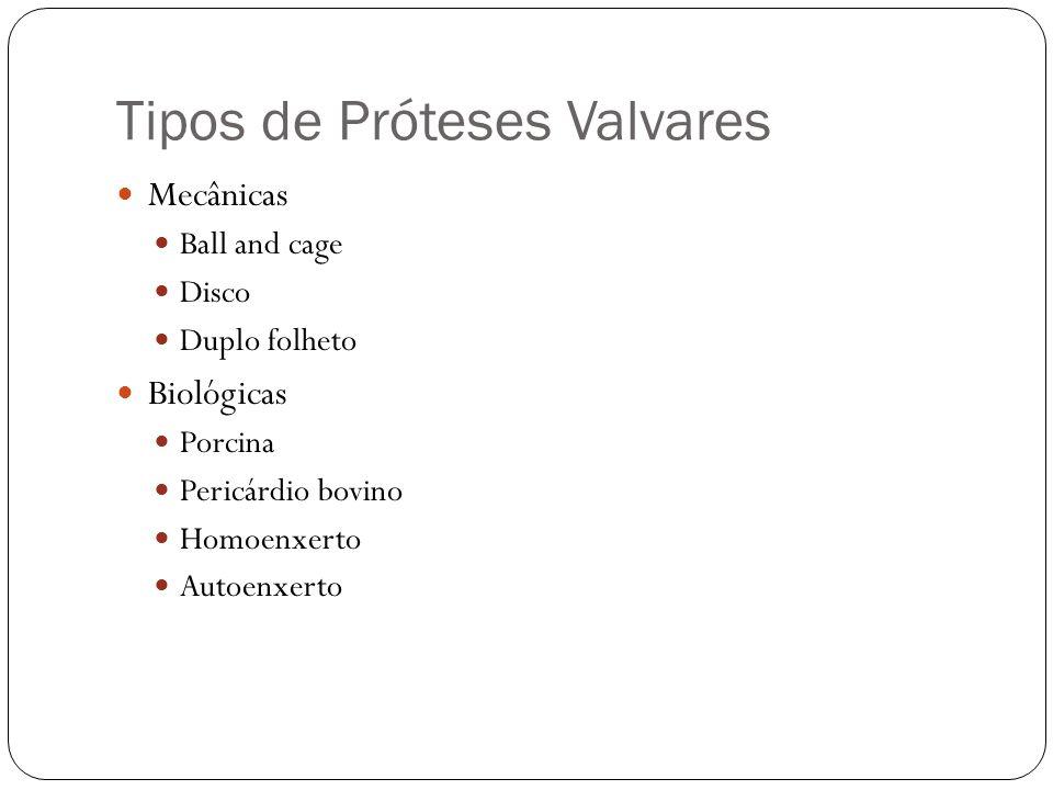 Tipos de Próteses Valvares