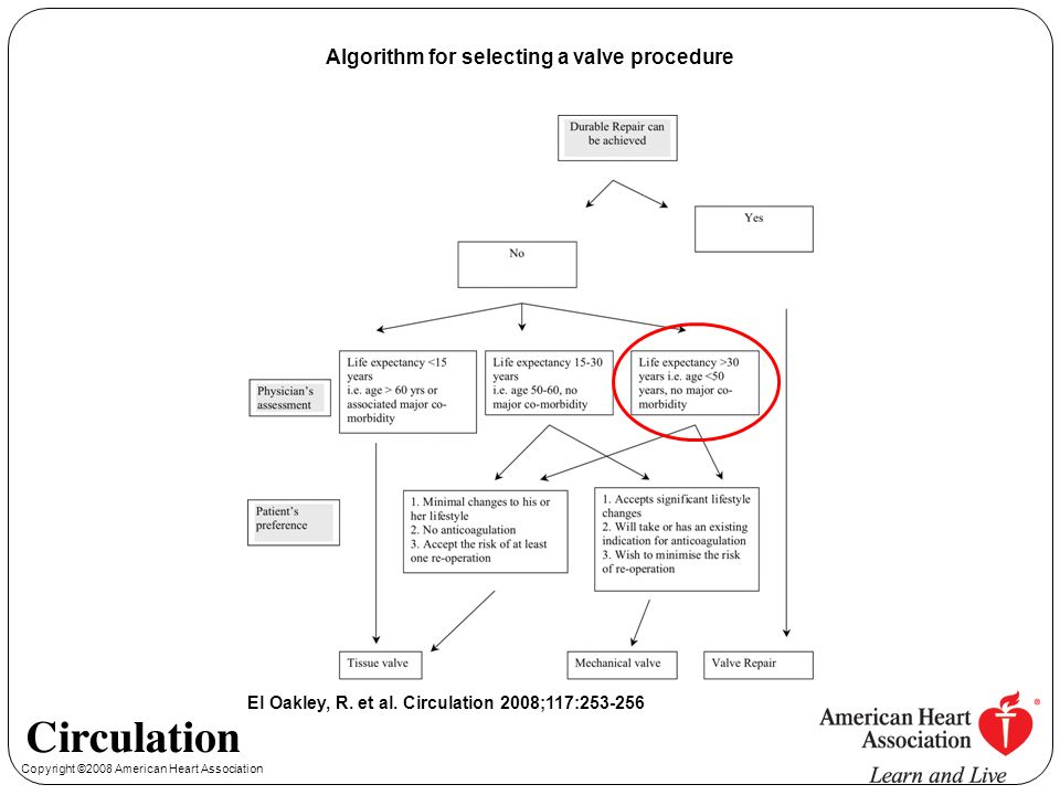 Algorithm for selecting a valve procedure