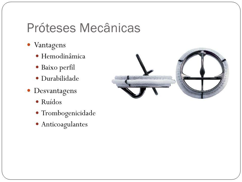 Próteses Mecânicas Vantagens Desvantagens Hemodinâmica Baixo perfil