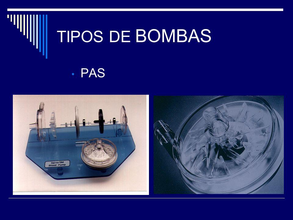 TIPOS DE BOMBAS PAS