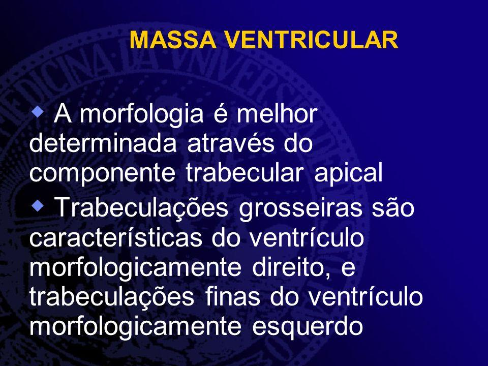 MASSA VENTRICULAR A morfologia é melhor determinada através do componente trabecular apical.