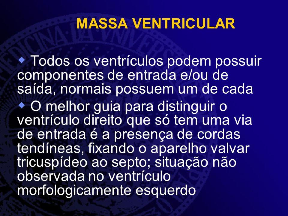 MASSA VENTRICULAR Todos os ventrículos podem possuir componentes de entrada e/ou de saída, normais possuem um de cada.