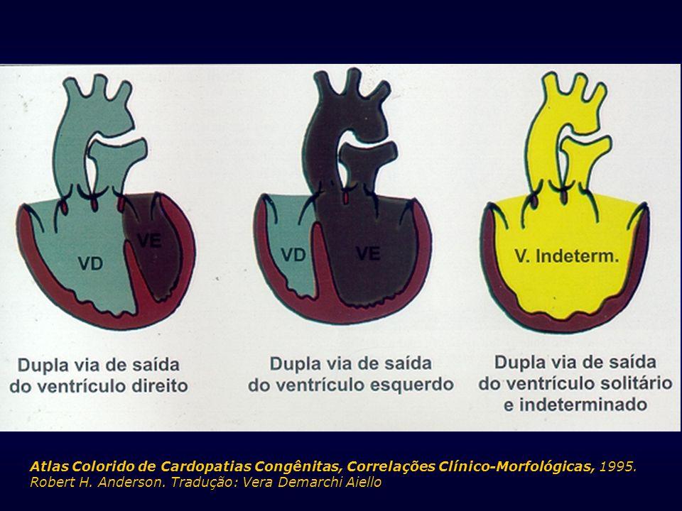 Atlas Colorido de Cardopatias Congênitas, Correlações Clínico-Morfológicas, 1995.