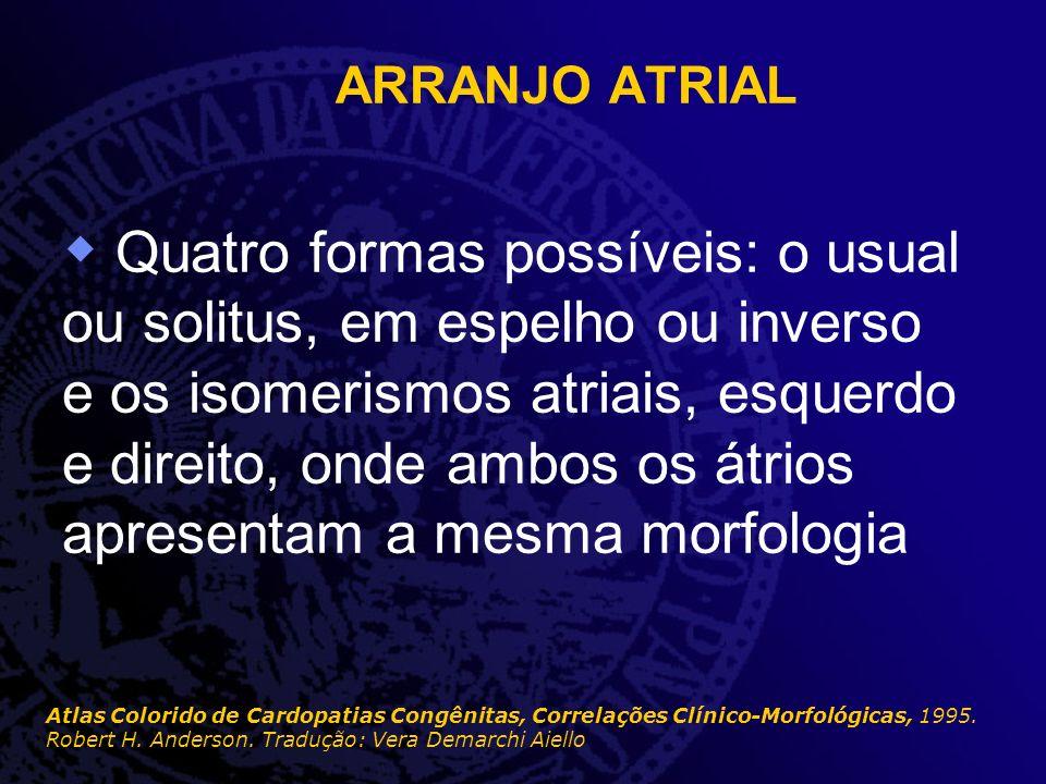 ARRANJO ATRIAL