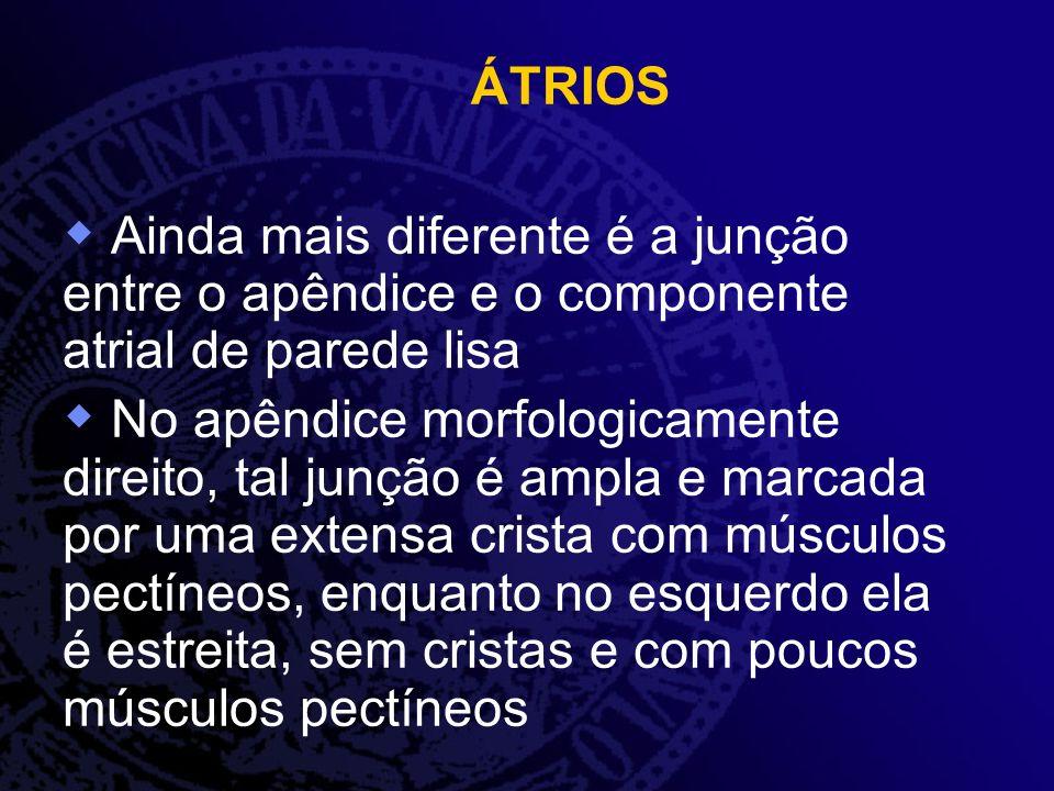ÁTRIOS Ainda mais diferente é a junção entre o apêndice e o componente atrial de parede lisa.