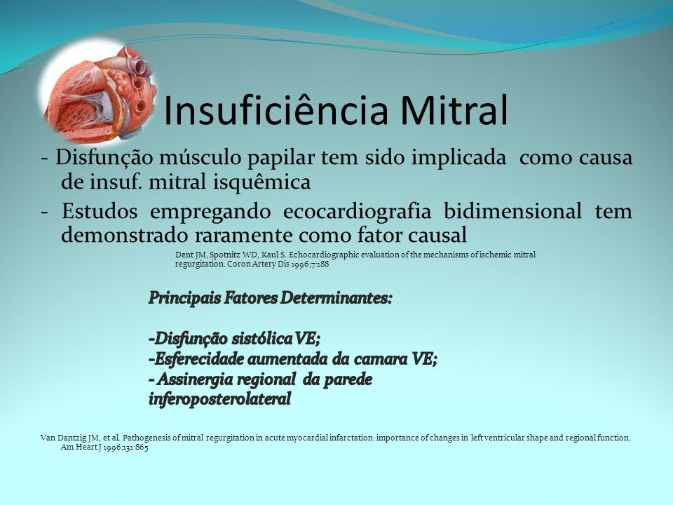 Insuficiência Mitral - Disfunção músculo papilar tem sido implicada como causa de insuf. mitral isquêmica.