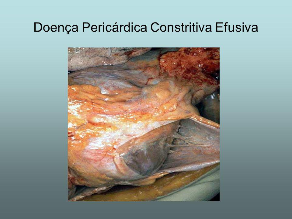 Doença Pericárdica Constritiva Efusiva
