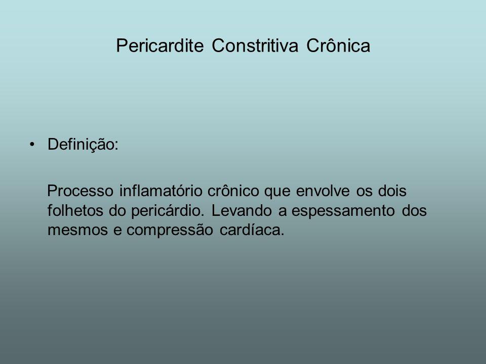 Pericardite Constritiva Crônica