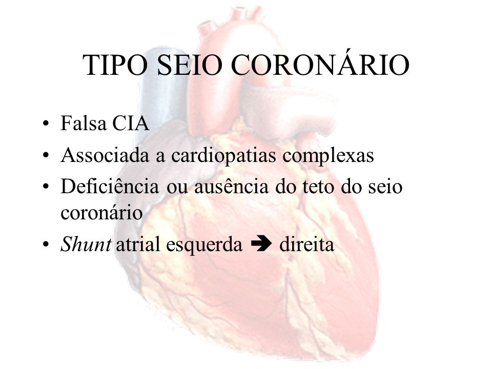 TIPO SEIO CORONÁRIO Falsa CIA Associada a cardiopatias complexas