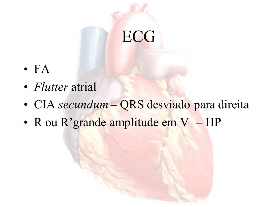 ECG FA Flutter atrial CIA secundum – QRS desviado para direita