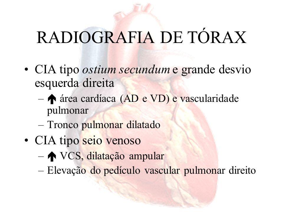 RADIOGRAFIA DE TÓRAXCIA tipo ostium secundum e grande desvio esquerda direita.  área cardíaca (AD e VD) e vascularidade pulmonar.