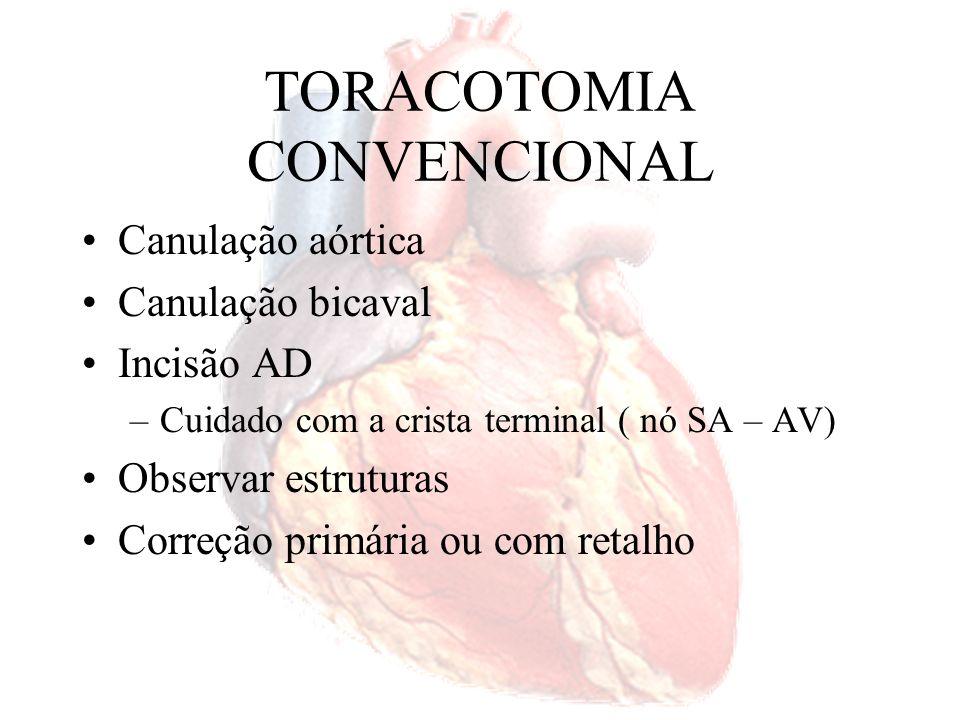 TORACOTOMIA CONVENCIONAL