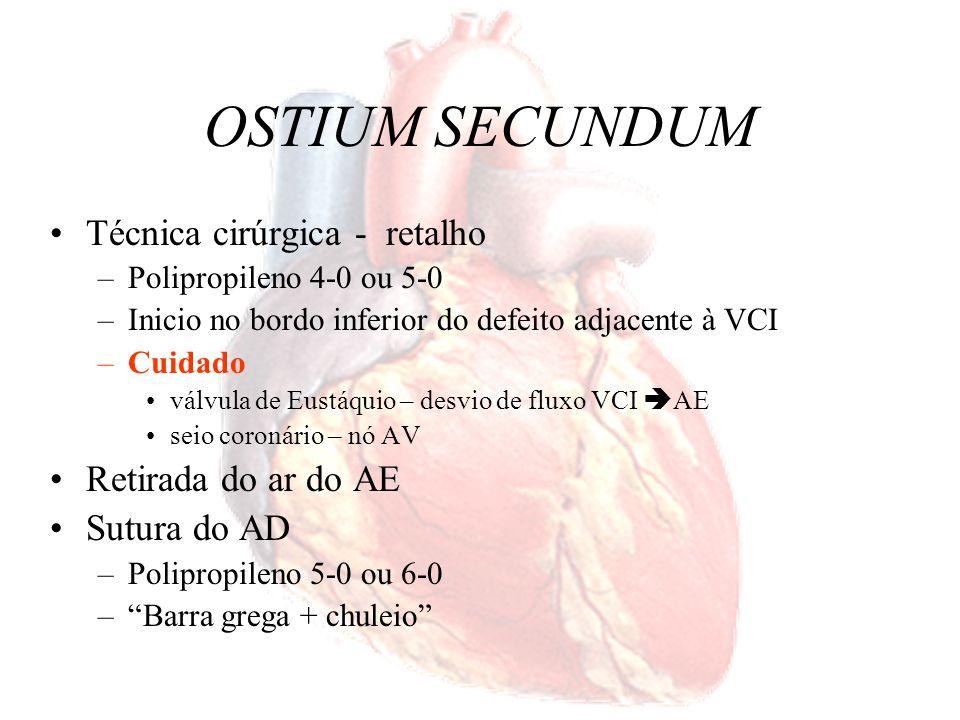 OSTIUM SECUNDUM Técnica cirúrgica - retalho Retirada do ar do AE