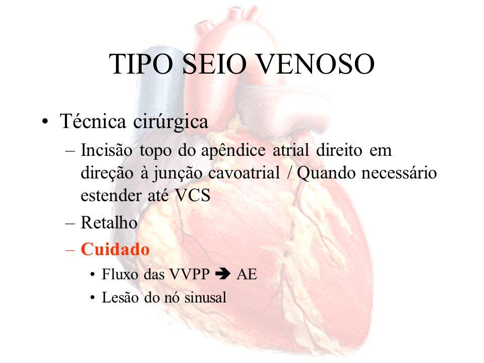 TIPO SEIO VENOSO Técnica cirúrgica