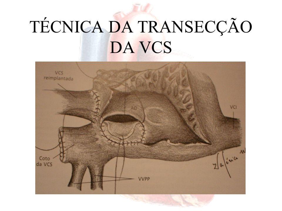 TÉCNICA DA TRANSECÇÃO DA VCS