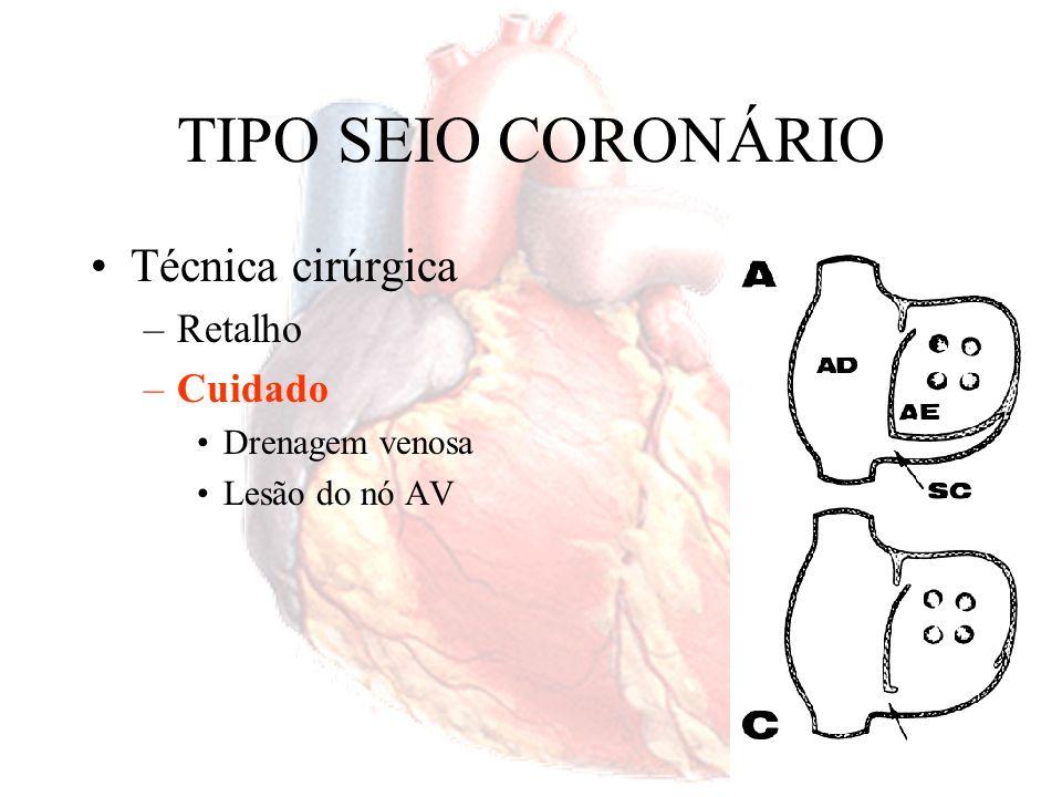 TIPO SEIO CORONÁRIO Técnica cirúrgica Retalho Cuidado Drenagem venosa