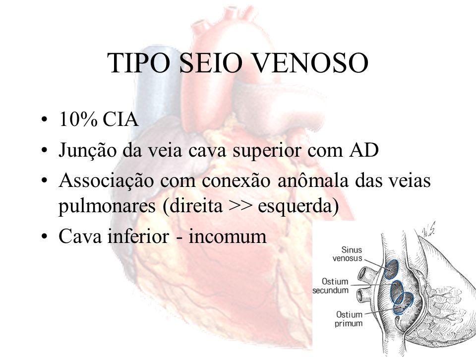 TIPO SEIO VENOSO 10% CIA Junção da veia cava superior com AD