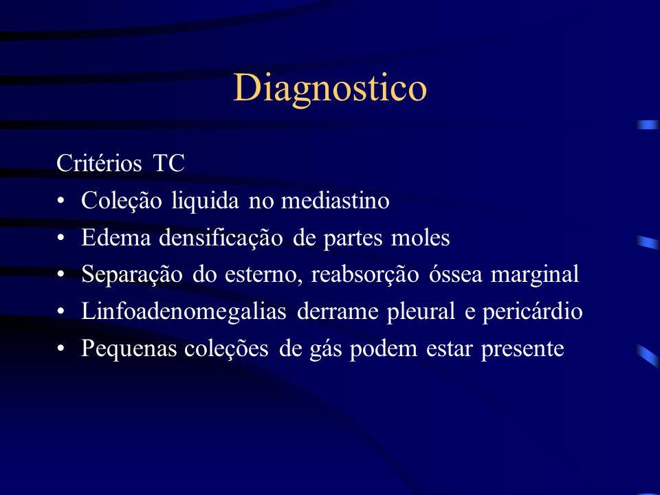 Diagnostico Critérios TC Coleção liquida no mediastino