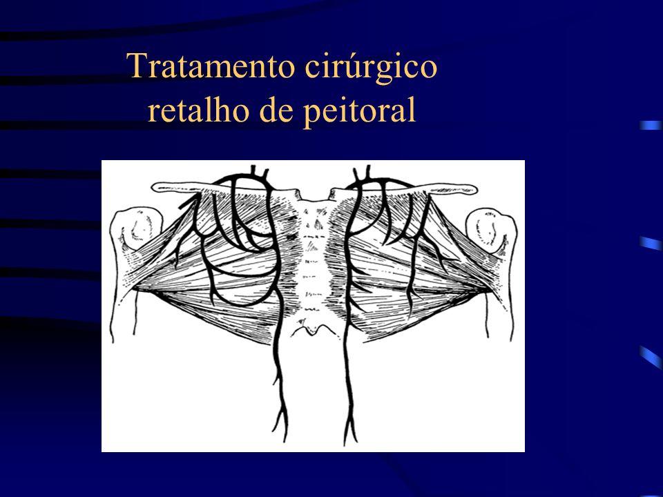 Tratamento cirúrgico retalho de peitoral