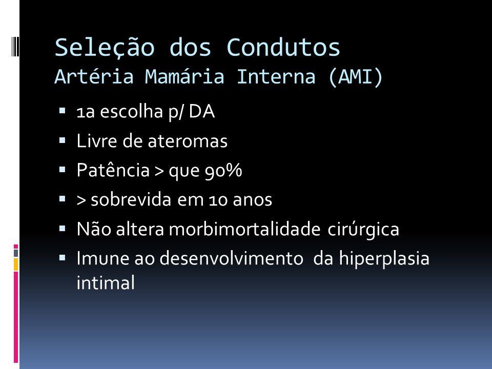 Seleção dos Condutos Artéria Mamária Interna (AMI)