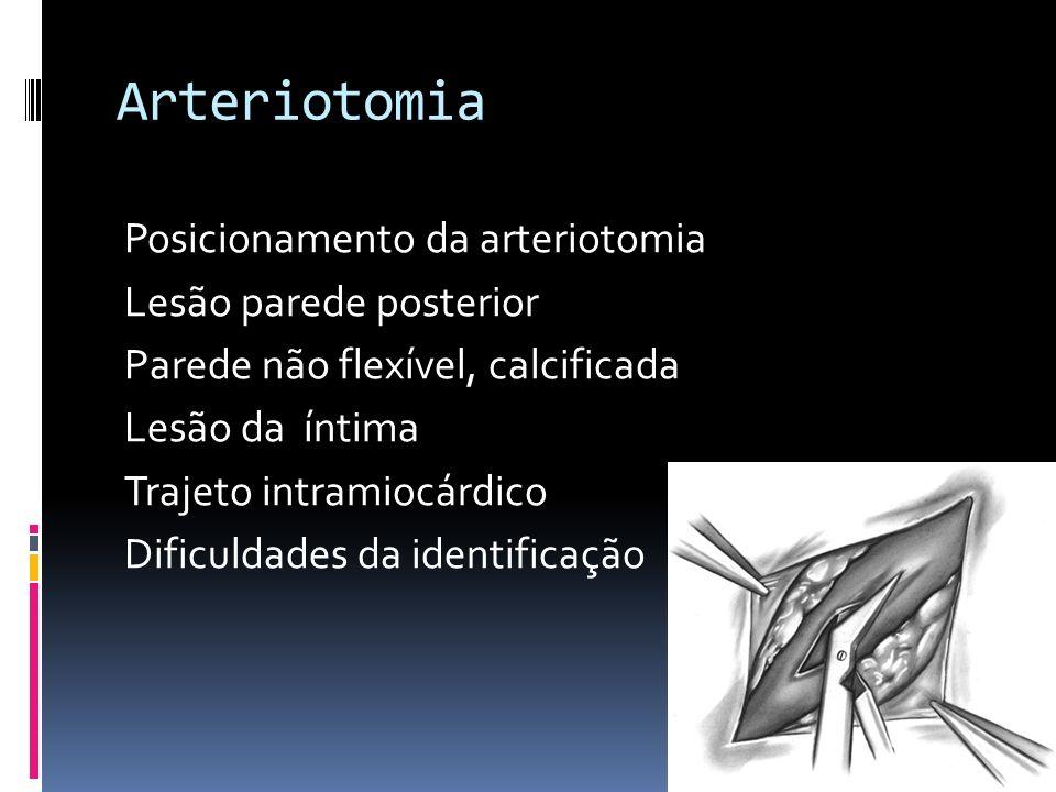 Arteriotomia