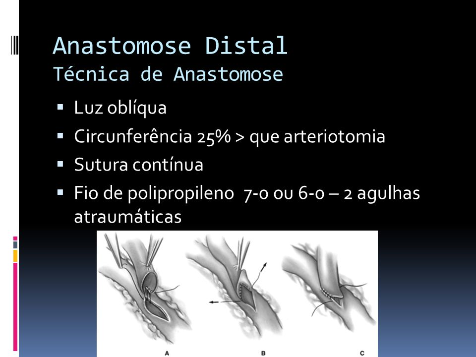 Anastomose Distal Técnica de Anastomose
