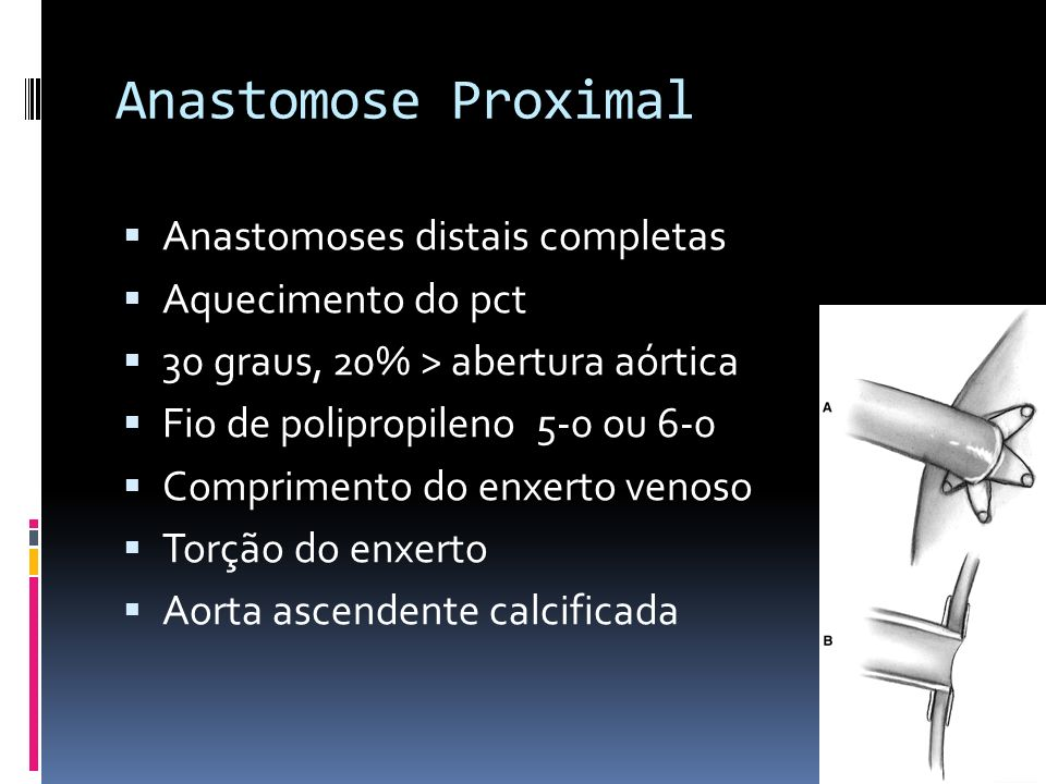 Anastomose Proximal Anastomoses distais completas Aquecimento do pct